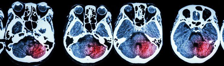An Overview of Vascular Dementia